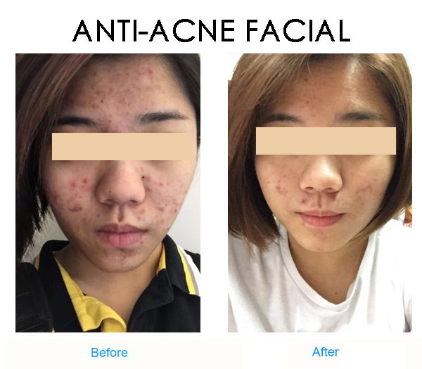 Consider, that Facial before and after photos