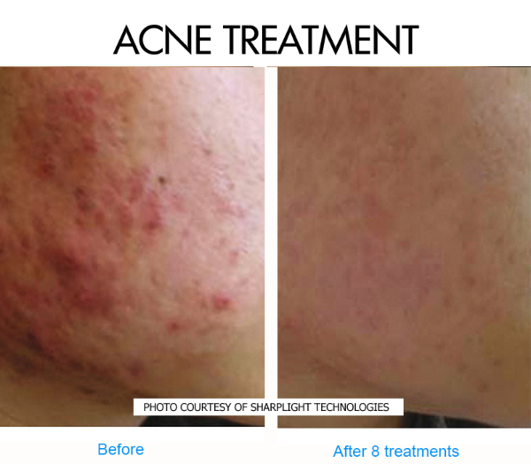 acne-2-before-and-after-picture