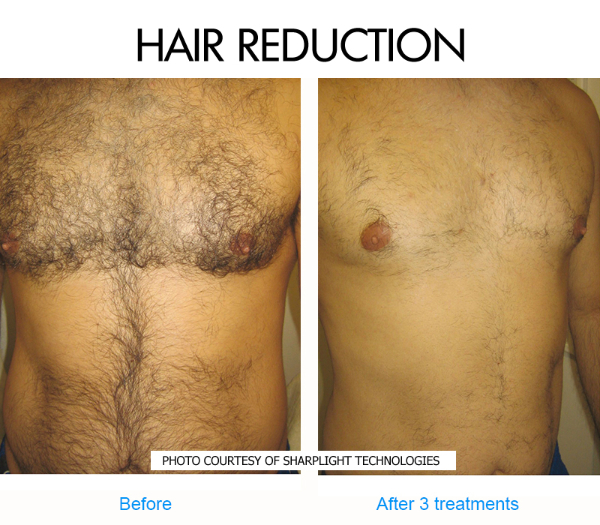 hairy-chest-before-and-after