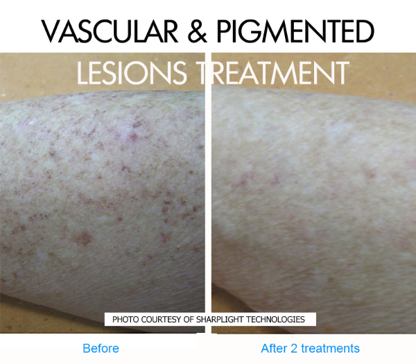 sun-pigmented-lesions-before-and-after-picture