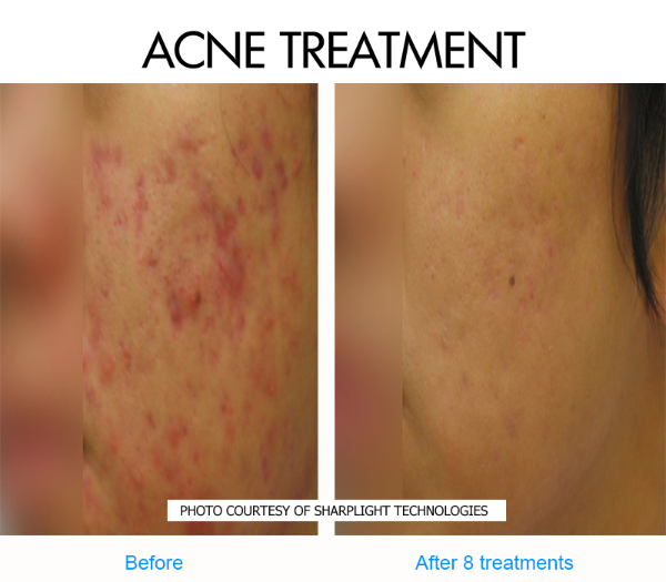 Before & After IPL Aesthetic Treatment | SG Face - Beauty & Make up