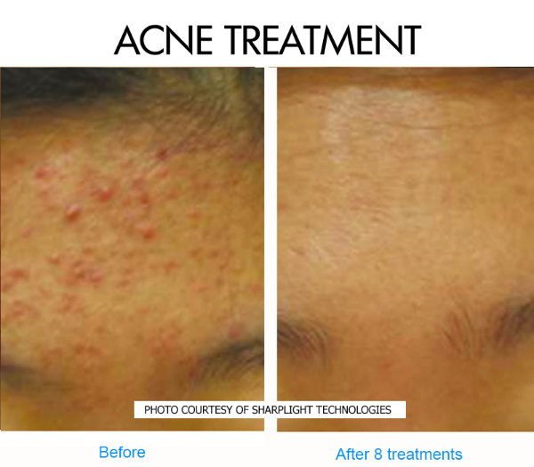 acne-3-before-and-after-picture