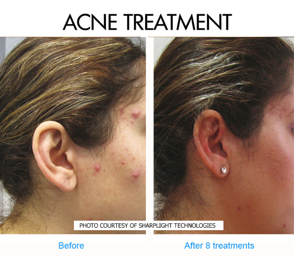 acne-type-2