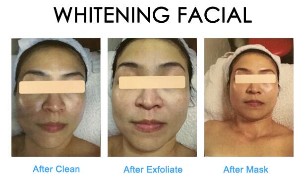 whitening-1